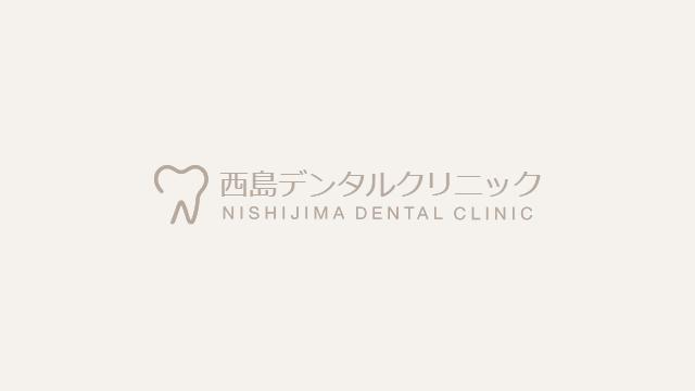 歯周病の検査って何をするの?