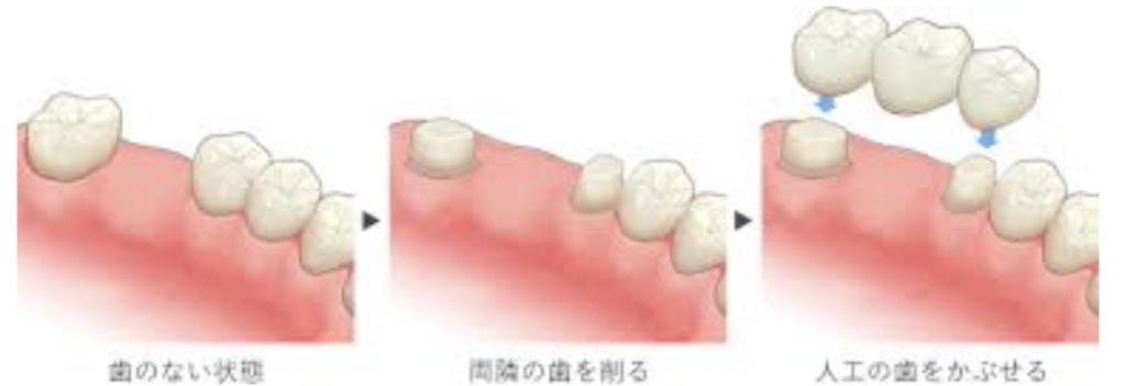 歯がなくなってしまったら  一般的な治療方法のご紹介