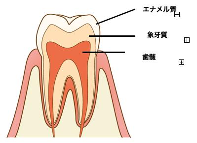 虫歯の種類、そして進行してしまうと